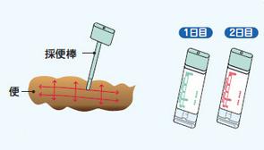 便潜血検査2日法