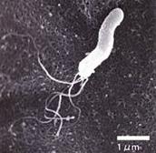ピロリ菌の電子顕微鏡写真