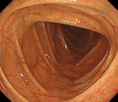 正常な大腸の写真