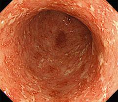 潰瘍性大腸炎の内視鏡写真